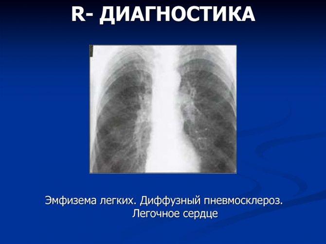 Лечение пневмосклероза народными средствами