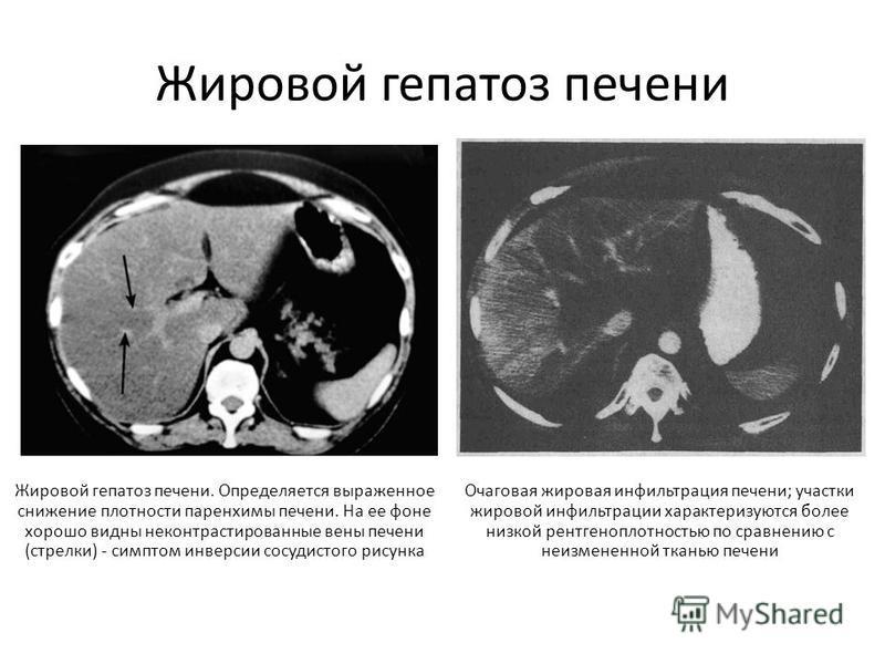 Признаки и лечение гепатоза печени у женщин