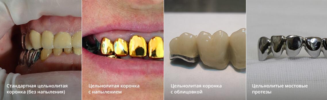 Что такое зубная коронка и как выбрать лучшую: виды протезирования, подготовка и установка