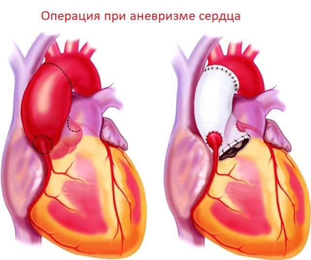"""Рубрика """"аневризма сердца"""""""