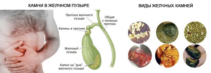 Растворение камней в желчном пузыре без операции препаратами и народными средствами