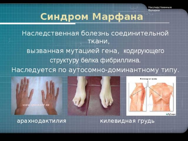 Синдром марфана: лечение, причины, симптомы, признаки