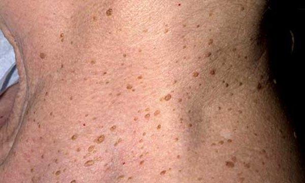 Кератома – что это такое, как лечить кератоз, чтобы предотвратить рак?