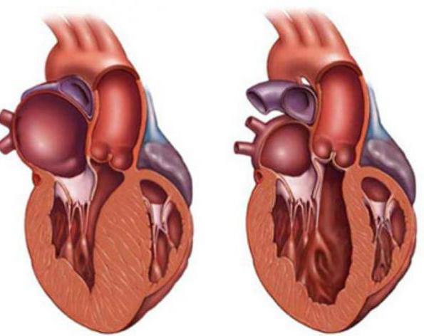 Кардиомегалия (большое сердце): что это такое, симптомы, лечение, прогноз