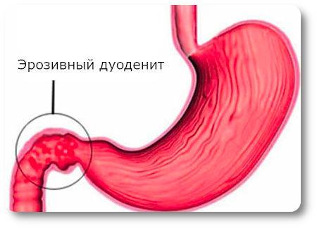 Бульбит желудка - что это такое, лечение, причины и разновидности