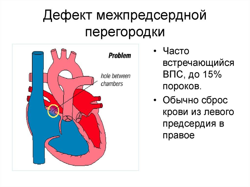 Что такое порок сердца у взрослых — сердце