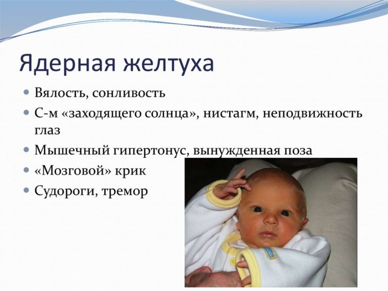 Что такое механическая желтуха: симптомы и причины болезни, продолжительность жизни с ней, лечение патологии