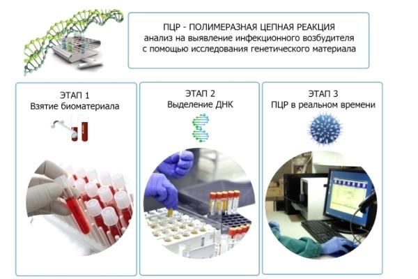 Пцр тест на коронавирус, ответы на популярные вопросы. - provirus