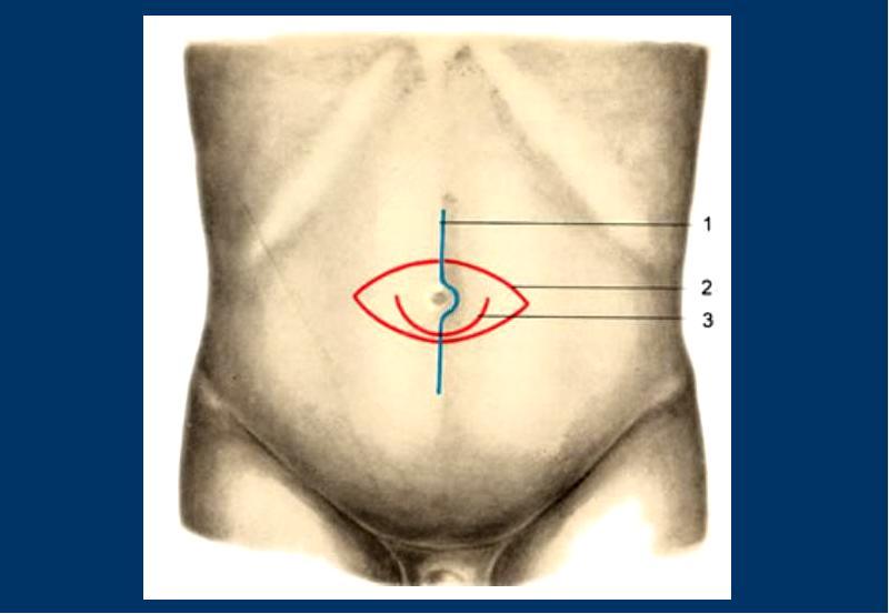 Апоневроз передней брюшной стенки: строение, функции и дефекты