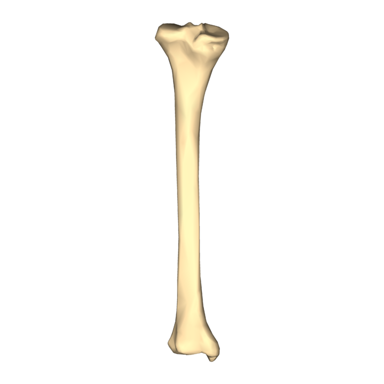Экзостоз кости