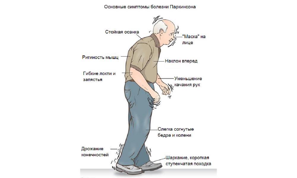 Болезнь паркинсона: что это такое, первые признаки и симптомы, лечение