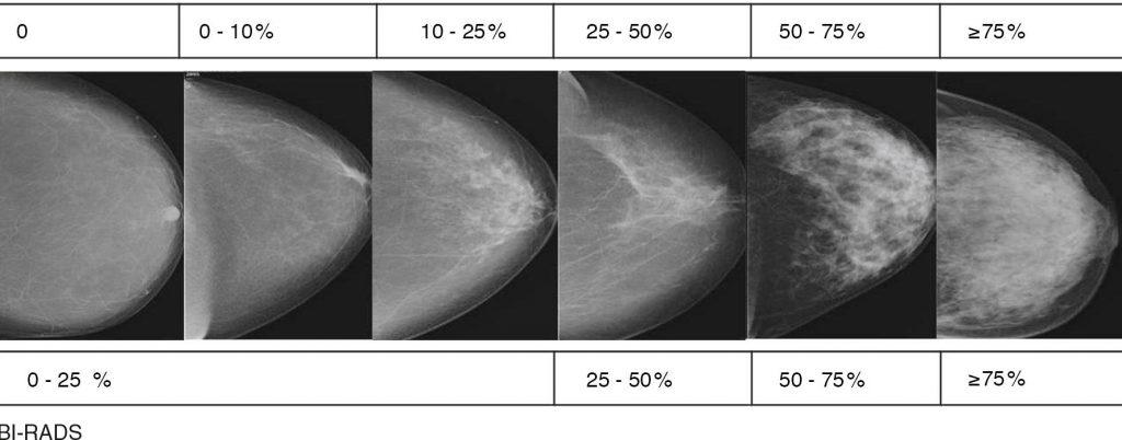 Bi-rads 3 при маммографии: граница между добром и злом