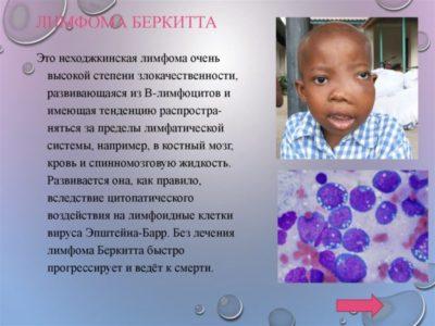 Неходжкинская лимфома симптомы и методы лечения заболевания