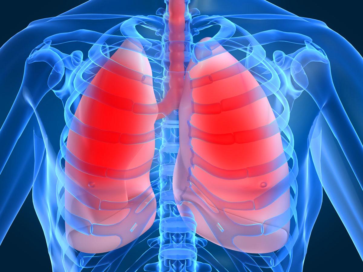Эмфизема легких: что это такое, причины, симптомы и лечение