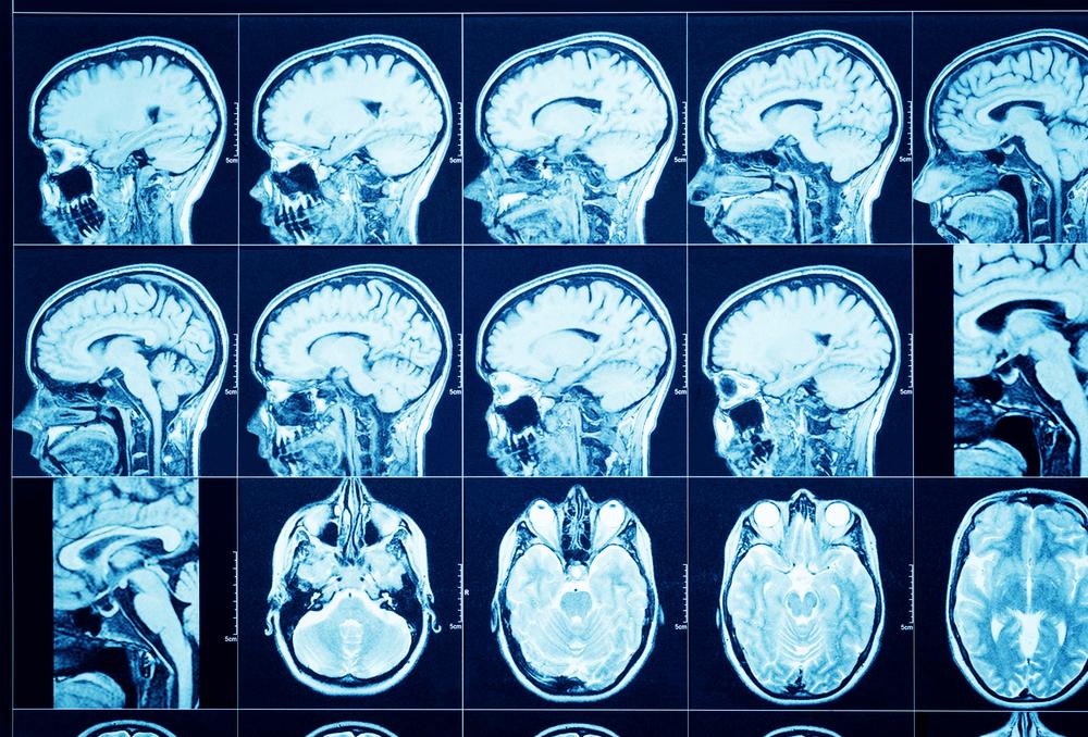 Кт головного мозга с контрастом – цена в спб, сделать в см-клиника
