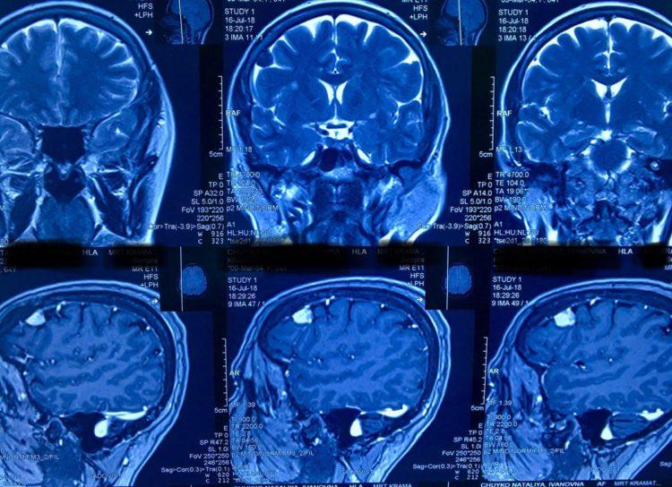 Менингиома — доброкачественная опухоль головного мозга