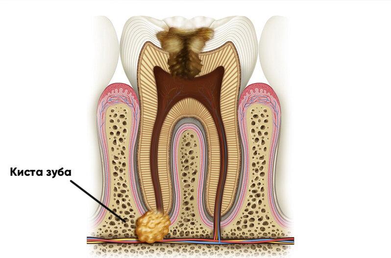 Киста в десне зуба: причины и симптомы, способы лечения