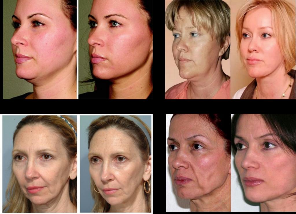 Лифтинг лица аппаратный - 8 разновидностей самых эффективных процедур для омоложения лица на аппарате doublo в косметологии