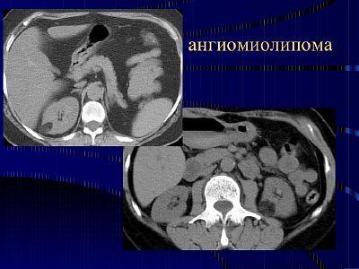 Ангиомиолипома правой и левой почки: опасна ли она для жизни, как проявляется