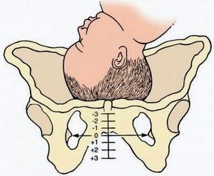 Симфизит при беременности: фото симптомы лечение, как определить у остеопата