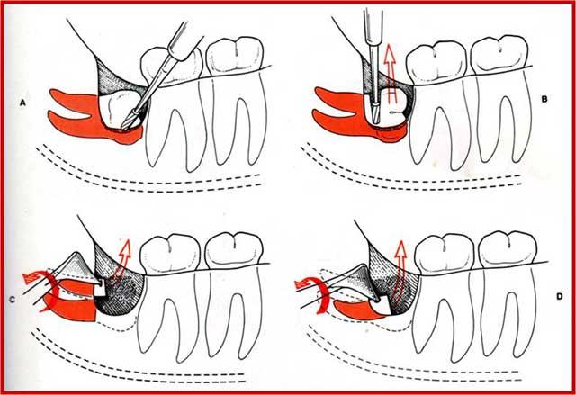 Турунды детям. что такое турунда в ухо и как её сделать? пошаговые инструкции по изготовлению