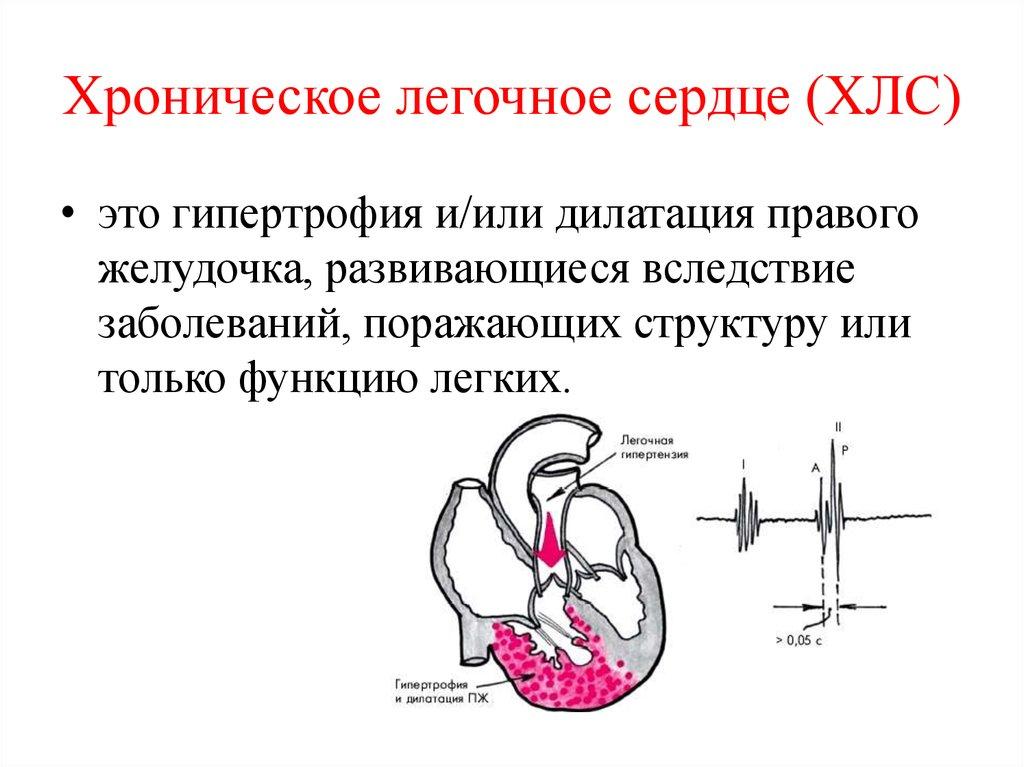 Легочное сердце - что это, причины, виды, симптомы, лечение