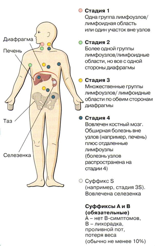 Неходжкинская лимфома - что это такое и какие прогнозы дают врачи