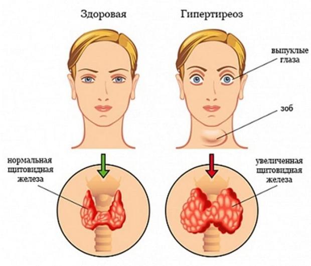 Тиреотоксикоз, что это? - симптомы и лечение, препараты