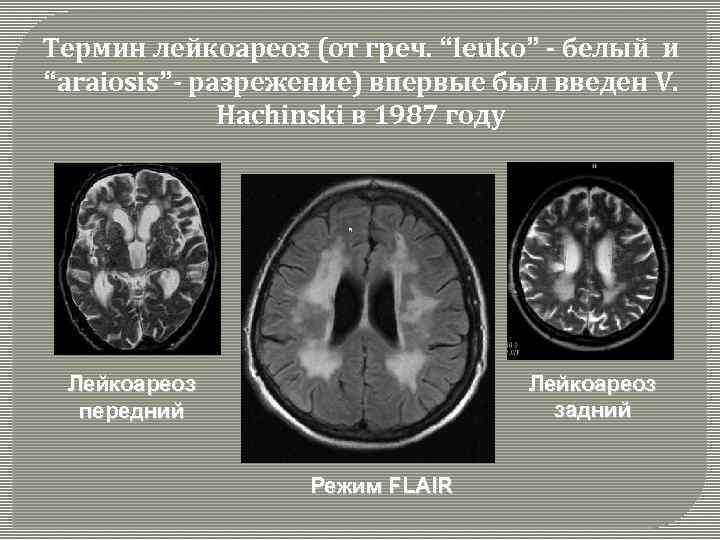 Лейкоареоз головного мозга: лечение, диагностика и стадии