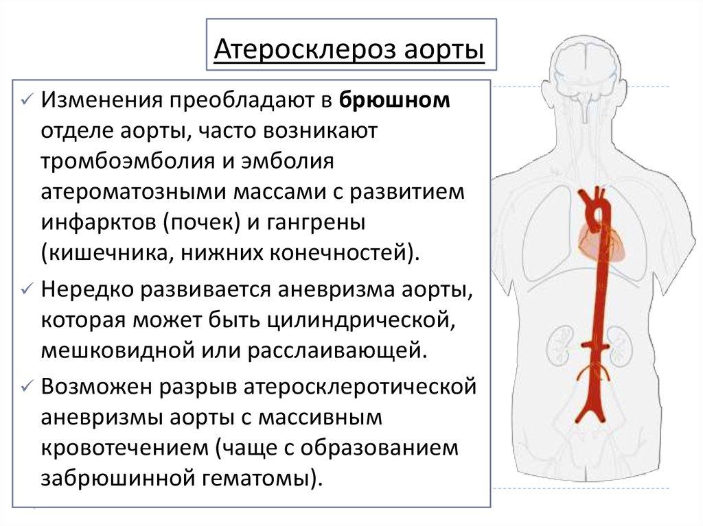 Как лечить атеросклеротический кардиосклероз