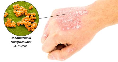 Стафилококк (стафилококковая инфекция): лечение, симптомы