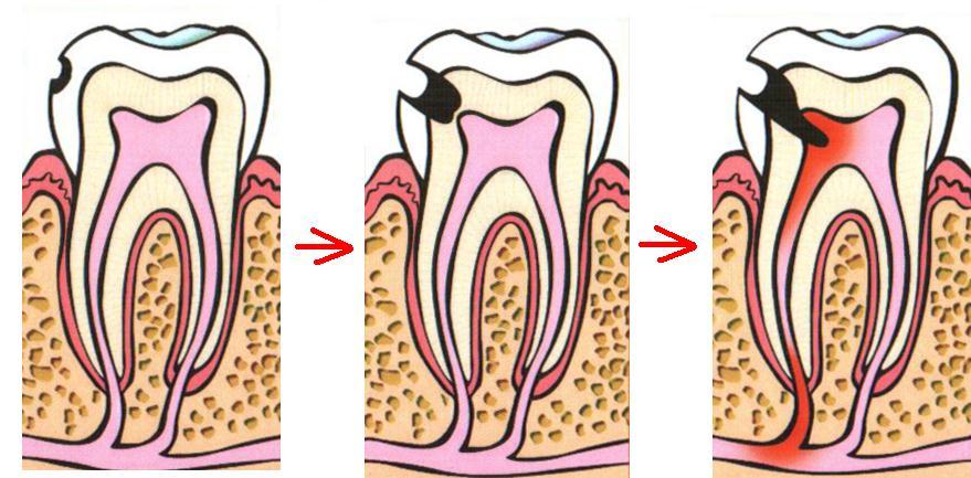 Пульпит зуба: симптомы, методы лечения и профилактика
