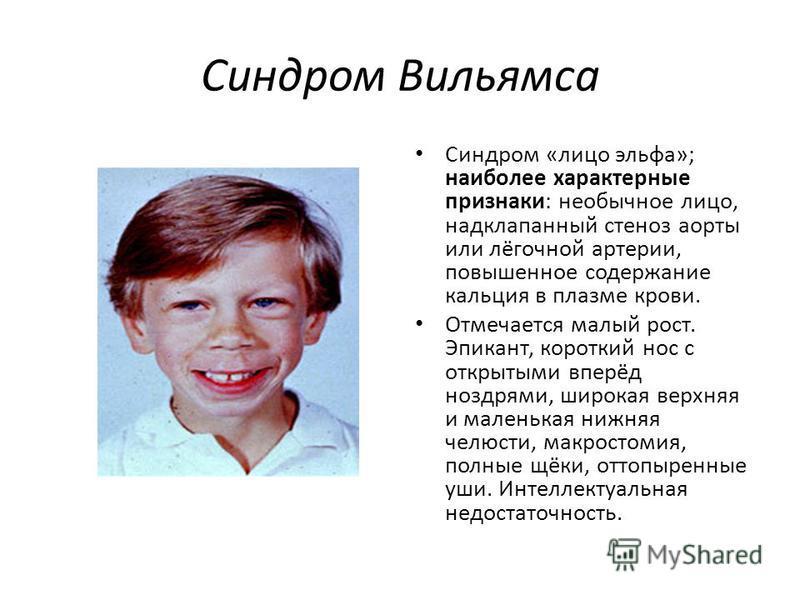 Синдром вильямса (лицо эльфа): причины, признаки, диагноз, лечение, прогноз