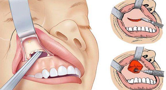 Киста зуба: причины, симптомы и способы лечения болезни