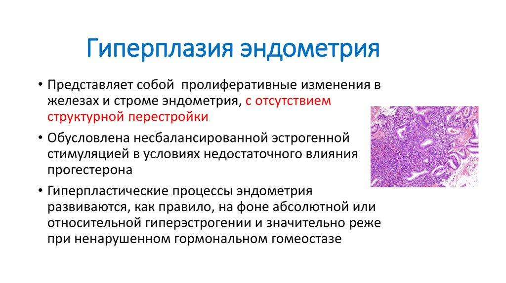 Лечение гиперплазии эндометрия