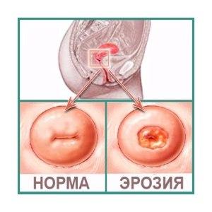 Эрозия шейки матки: симптомы, причины, лечение