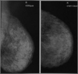 Маммография - что это, виды, что показывает, когда и кому делать