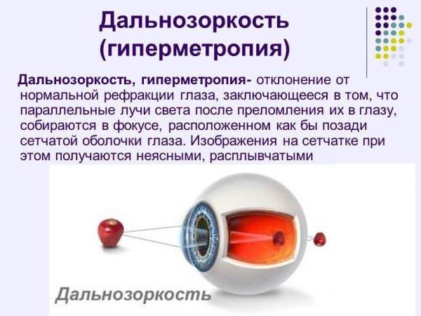 Гиперметропия средней степени: причины, симптомы, лечение у взрослых