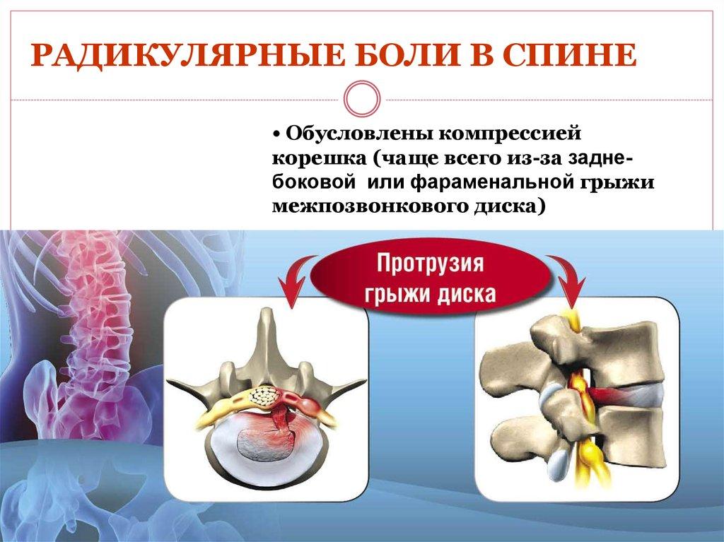 Люмбалгия поясничного отдела позвоночника: симптомы и лечение