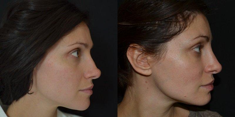 Ринопластика: виды и методы коррекции носа — plastica.top
