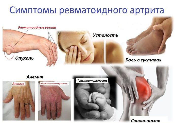 Ревматоидный артрит — стадии, причины, симптомы, лечение, профилактика