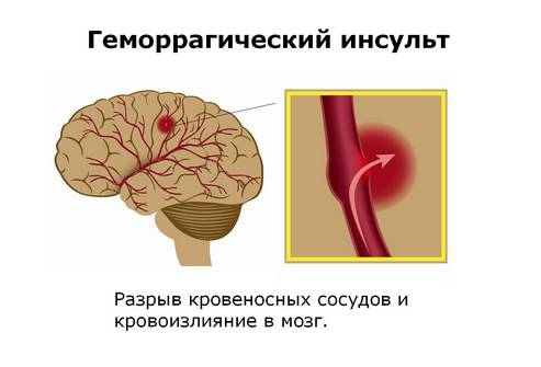 Геморрагия - причины, лечение, симптомы, формы, последствия