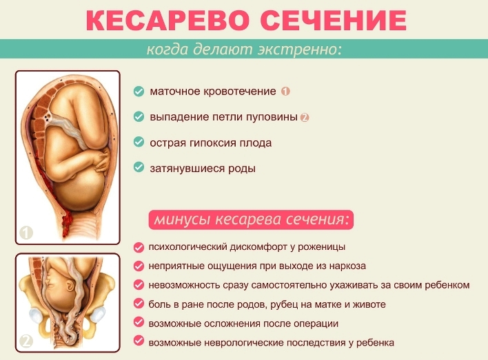 Кесарево сечение - методики и описание операции, анестезия, возможные осложнения и реабилитация