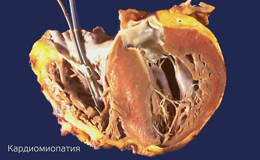 Современные подходы к лечению больных гипертрофической кардиомиопатией