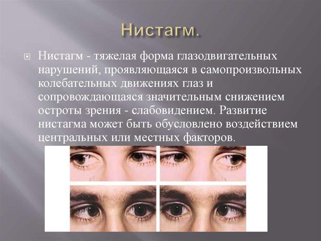 Нистагм: симптомы, причины возникновения и лечение заболевания глазного яблока