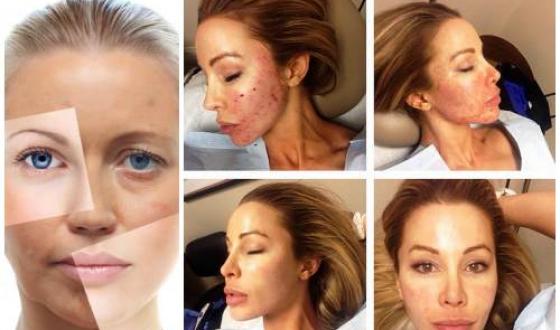 Плазмолифтинг лица — фото до и после, отзывы врачей, показания и противопоказания для процедуры