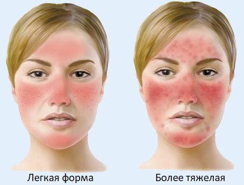 Розацеа: причины, симптомы, схема лечения и диета при розацеа