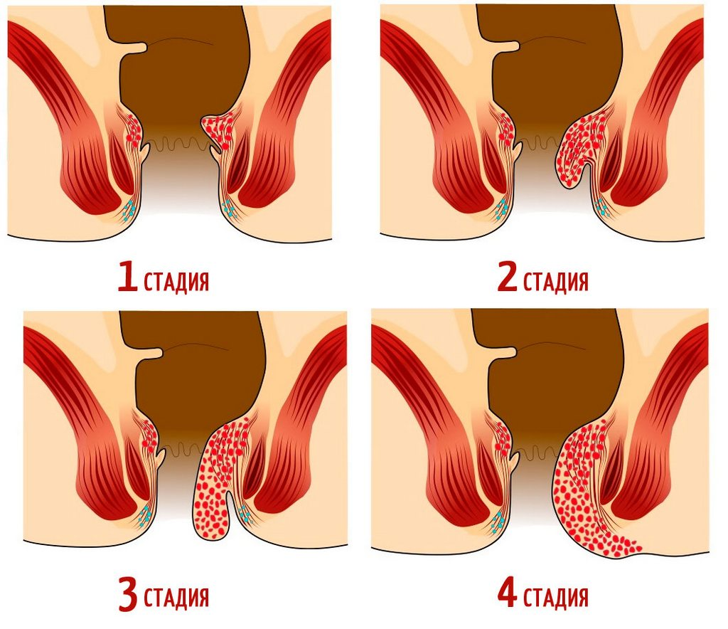 Наружный геморрой у женщин: симптомы, эффективное лечение, народные рецепты