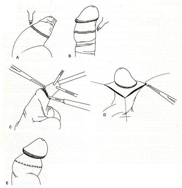 Что такое обрезание и кому показана такая процедура?