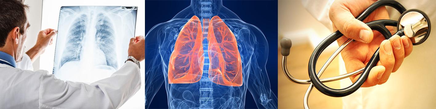 Пульмонолог – что лечит у взрослых: кто это за врач и какие заболевания лечит онколог пульмонолог